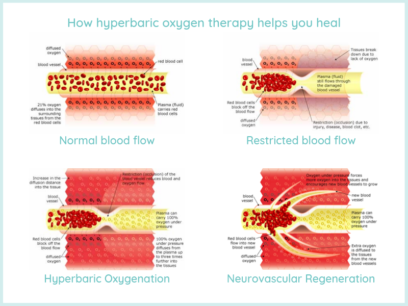 hyperbaric oxygen therapy for wound healing