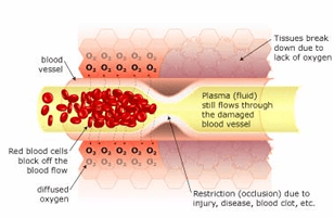 Restricted Blood Flow